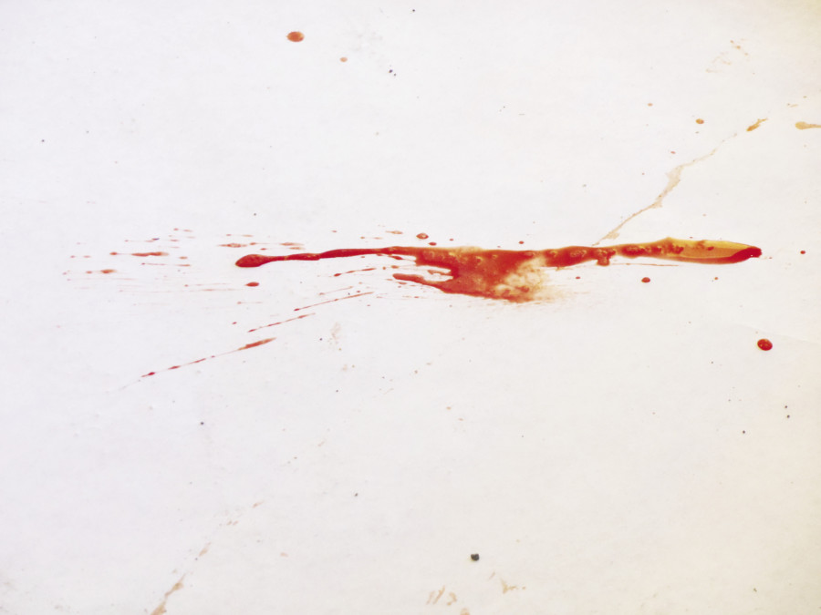 Students examined different types of bloodstains.